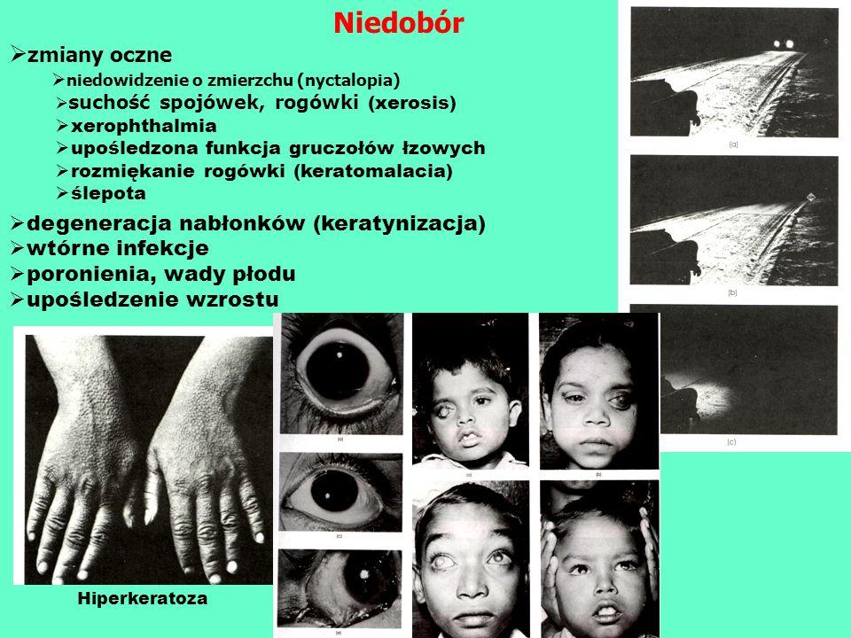 Niedobór zmiany oczne niedowidzenie o zmierzchu (nyctalopia) suchość spojówek, rogówki (xerosis) xerophthalmia upośledzona funkcja gruczołów łzowych r