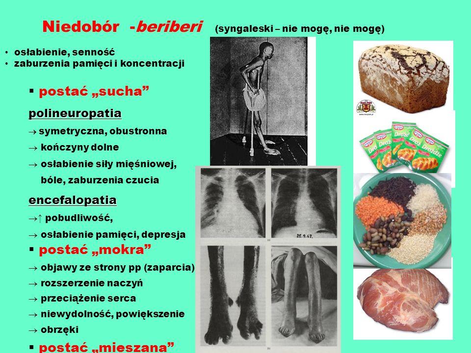 Niedobór -beriberi (syngaleski – nie mogę, nie mogę) osłabienie, senność zaburzenia pamięci i koncentracji postać suchapolineuropatia symetryczna, obu