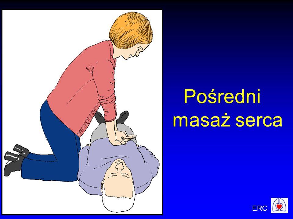 ERC Pośredni masaż serca