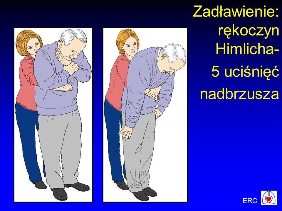 ERC Zadławienie: rękoczyn Himlicha- 5 uciśnięć nadbrzusza