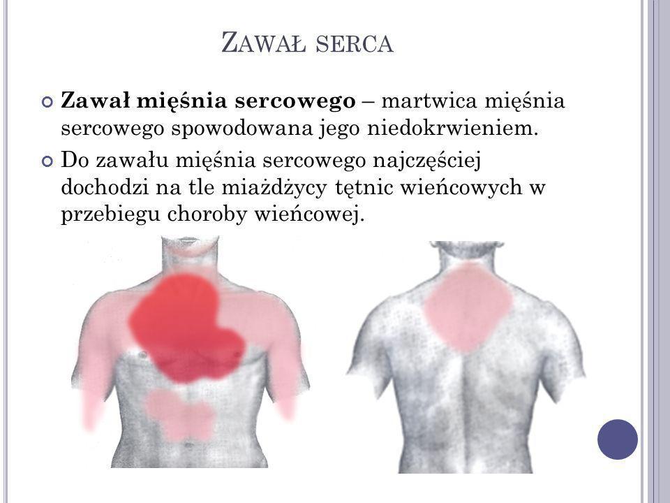 O BJAWY ZAWAŁU SERCA bardzo silny ból w klatce piersiowej trwający ponad 20 minut, nieustępujący po odpoczynku i po nitroglicerynie, piekący, dławiący, rozpierający, promieniujący do żuchwy, lewej kończyny górnej panika, lęk przed śmiercią duszność bladość lepki pot spadek ciśnienia tętniczego wzrost częstości akcji serca, zaburzenia tętna pobudzenie ruchowe utrata przytomności zatrzymanie krążenia