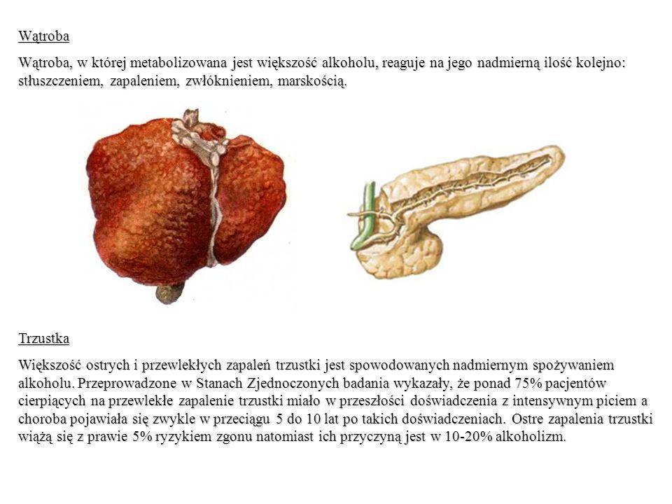Wątroba Wątroba, w której metabolizowana jest większość alkoholu, reaguje na jego nadmierną ilość kolejno: stłuszczeniem, zapaleniem, zwłóknieniem, marskością.