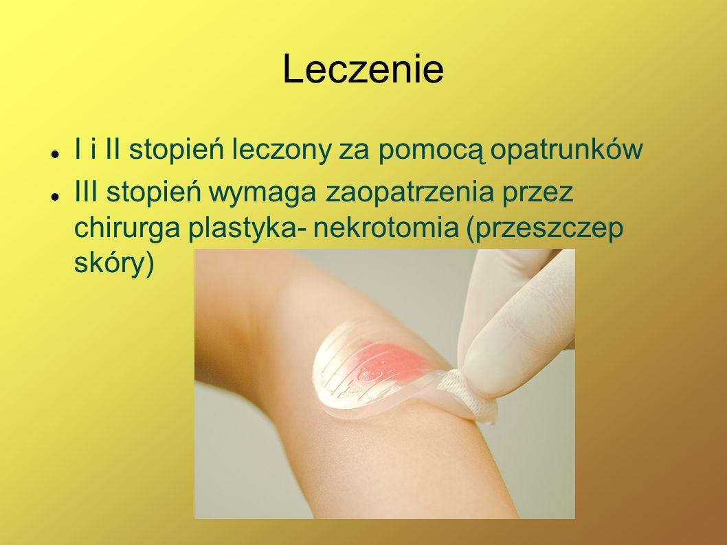 Leczenie I i II stopień leczony za pomocą opatrunków III stopień wymaga zaopatrzenia przez chirurga plastyka- nekrotomia (przeszczep skóry)