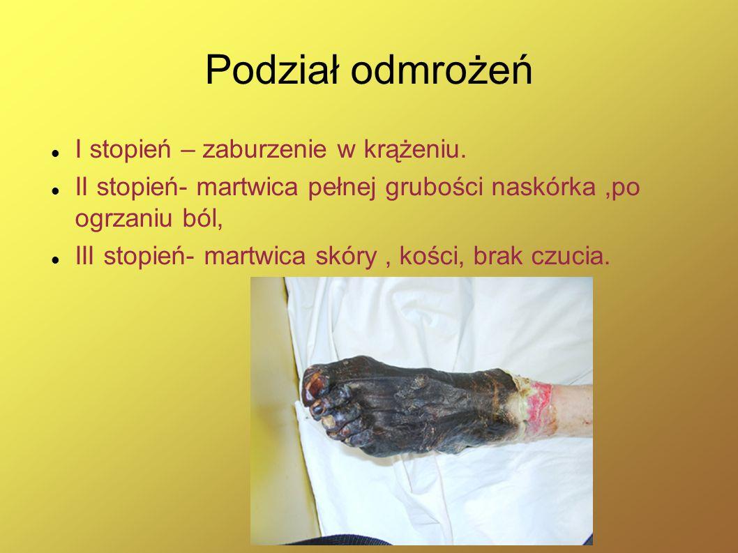 Podział odmrożeń I stopień – zaburzenie w krążeniu. II stopień- martwica pełnej grubości naskórka,po ogrzaniu ból, III stopień- martwica skóry, kości,