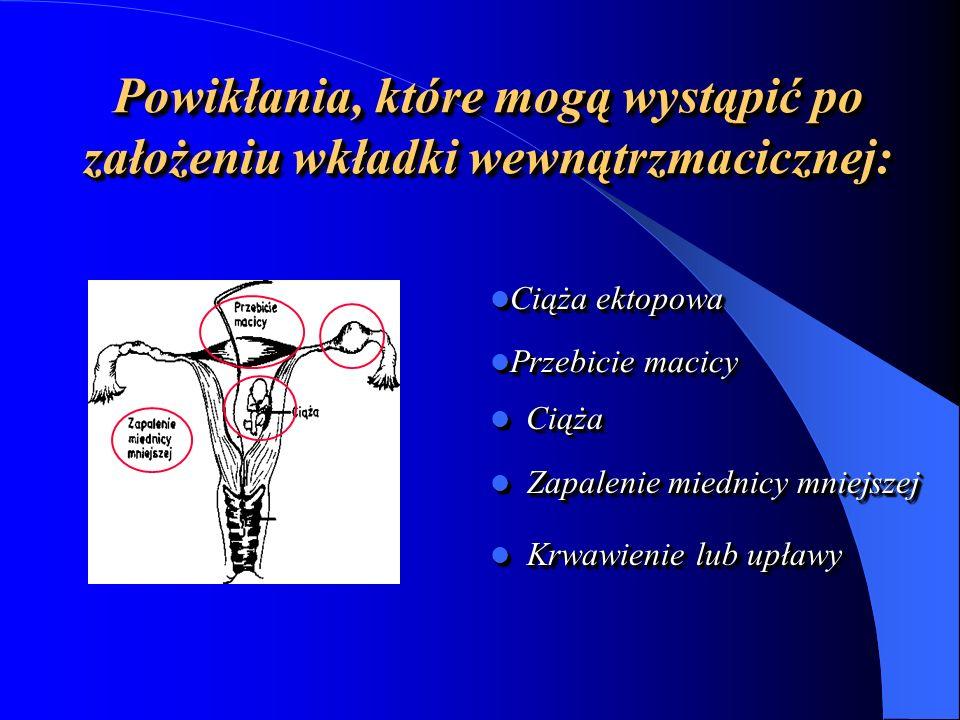 Powikłania, które mogą wystąpić po założeniu wkładki wewnątrzmacicznej: Ciąża Ciąża Zapalenie miednicy mniejszej Zapalenie miednicy mniejszej Krwawienie lub upławy Krwawienie lub upławy Ciąża ektopowa Ciąża ektopowa Przebicie macicy Przebicie macicy