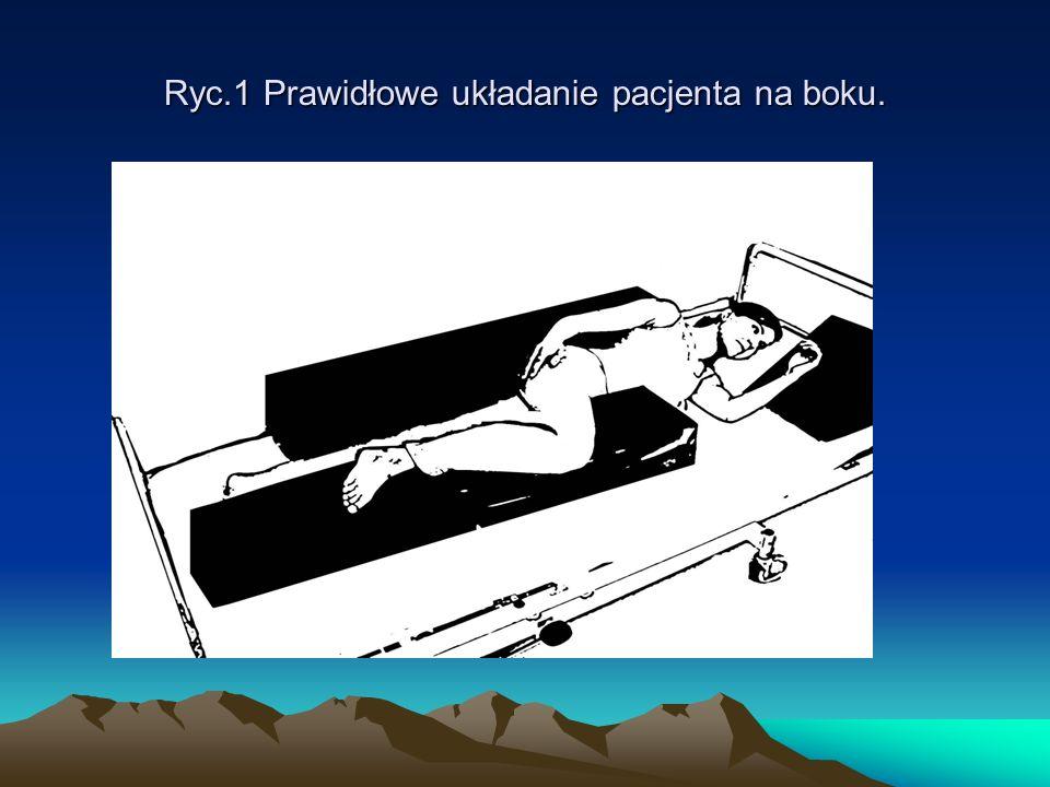 Ryc.1 Prawidłowe układanie pacjenta na boku.