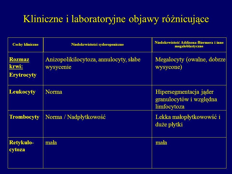 Niedokrwistość Addisona-Biermera i inne megaloblastyczne Niedokrwistości syderopeniczne Cechy kliniczne Megalocyty (owalne, dobrze wysycone) Anizopoli