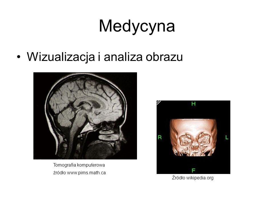 Medycyna Wizualizacja i analiza obrazu Tomografia komputerowa źródło www.pims.math.ca Źródło wikipedia.org