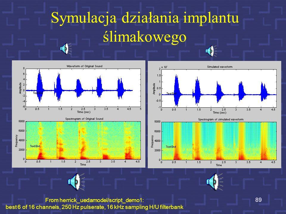 Procedura SPEAK Widmo chwilowe 20-kanałowy zestaw filtrów pasmowych Sygnał mowy /a/ Powierzchnia elektrod podstawaosklepek 6 maksymalnych napięć 88