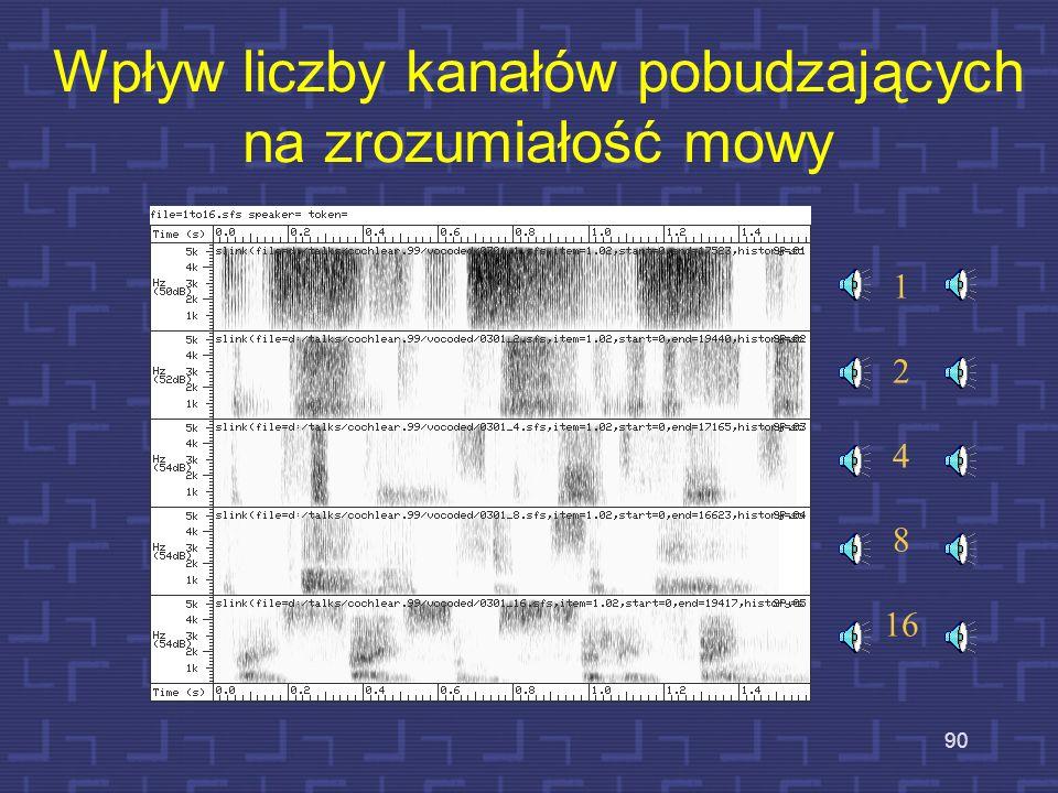 From herrick_uedamodel/script_demo1: best 6 of 16 channels, 250 Hz pulserate, 16 kHz sampling H/U filterbank Symulacja działania implantu ślimakowego