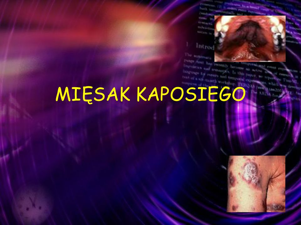 MIĘSAK KAPOSIEGO (1) HAART powodował znaczący spadek zachorowań i wydłużenie przeżycia chorych z AIDS Przed HAART: 30 / 1.000 W dobie HAART: 0,03 / 1.000 rozpoznanych AIDS Lebbe C,Blum L,pellet C, et al.