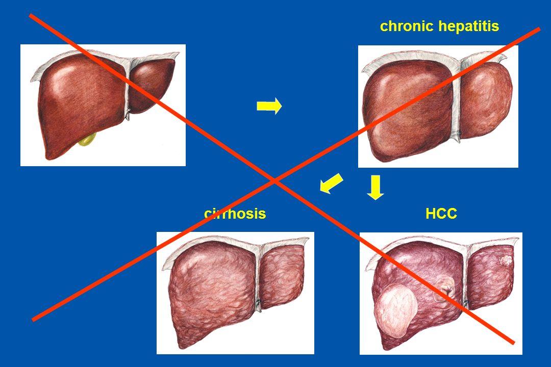 ODTA Chorzów ODTA Chorzów chronic hepatitis cirrhosisHCC