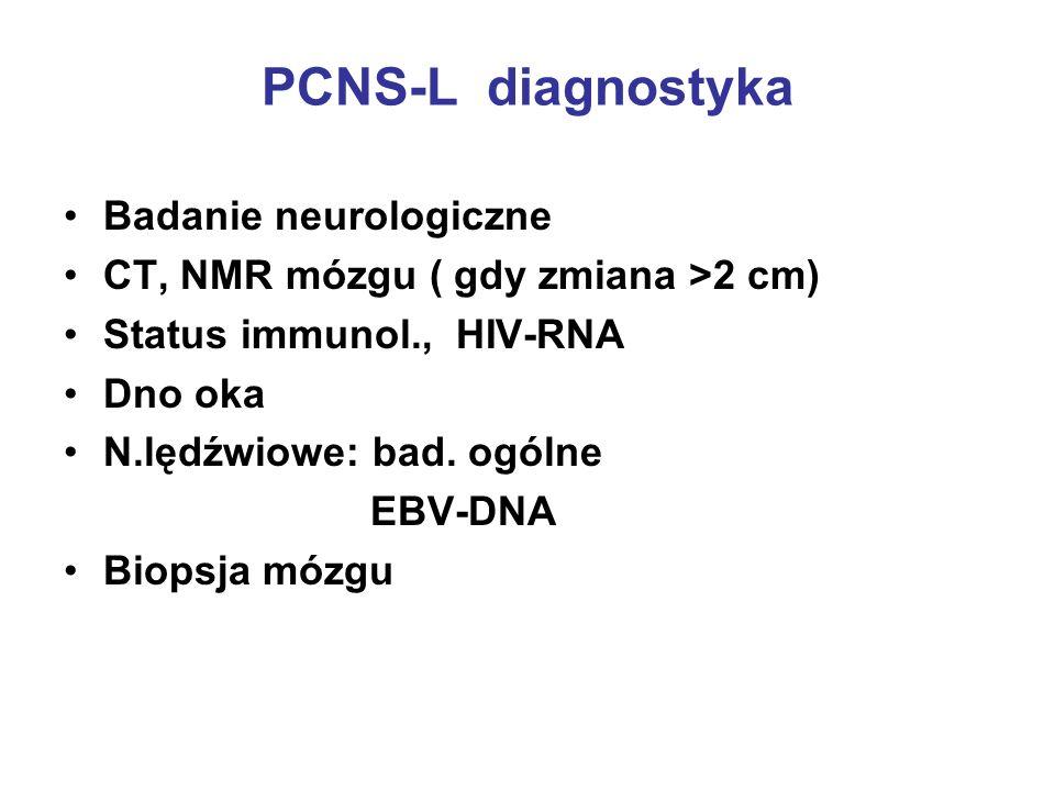 PCNS-L diagnostyka Badanie neurologiczne CT, NMR mózgu ( gdy zmiana >2 cm) Status immunol., HIV-RNA Dno oka N.lędźwiowe: bad. ogólne EBV-DNA Biopsja m