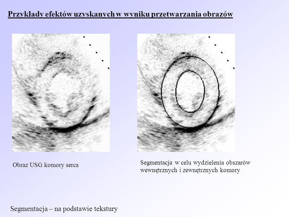 Obraz USG komory serca Segmentacja w celu wydzielenia obszarów wewnętrznych i zewnętrznych komory Przykłady efektów uzyskanych w wyniku przetwarzania