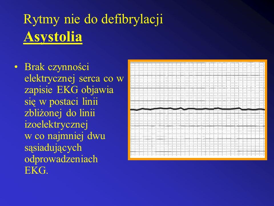 Rytmy nie do defibrylacji Asystolia Brak czynności elektrycznej serca co w zapisie EKG objawia się w postaci linii zbliżonej do linii izoelektrycznej