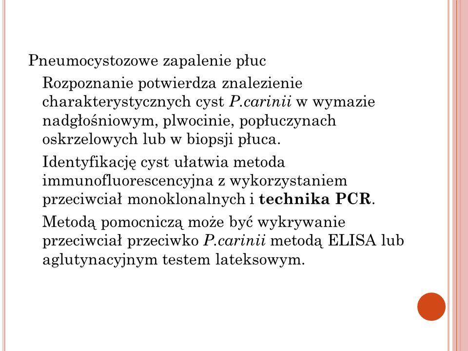 Pneumocystozowe zapalenie płuc Rozpoznanie potwierdza znalezienie charakterystycznych cyst P.carinii w wymazie nadgłośniowym, plwocinie, popłuczynach