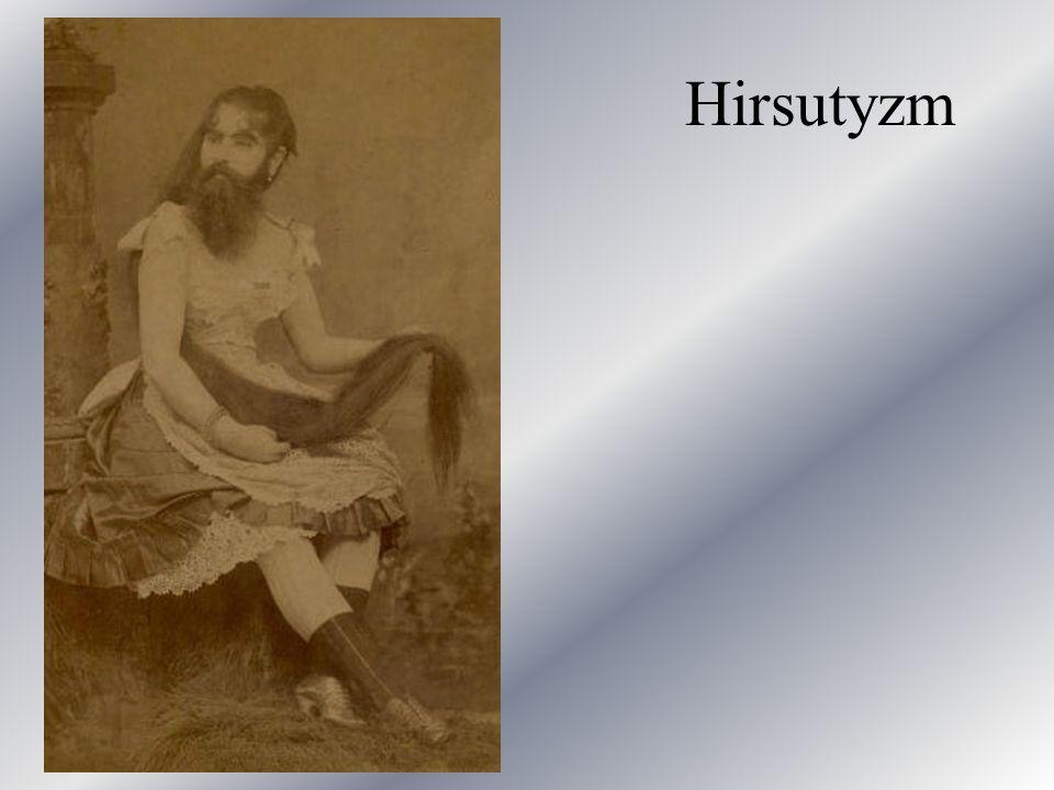 Hirsutyzm