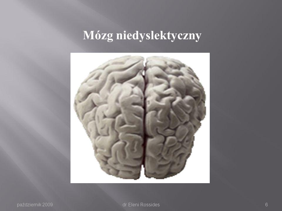 październik 2009dr Eleni Rossides5 Różnice między półkulami Lewa półkula mózguPrawa półkula mózgu język obrazy fakty uczucia analiza humor orientacja