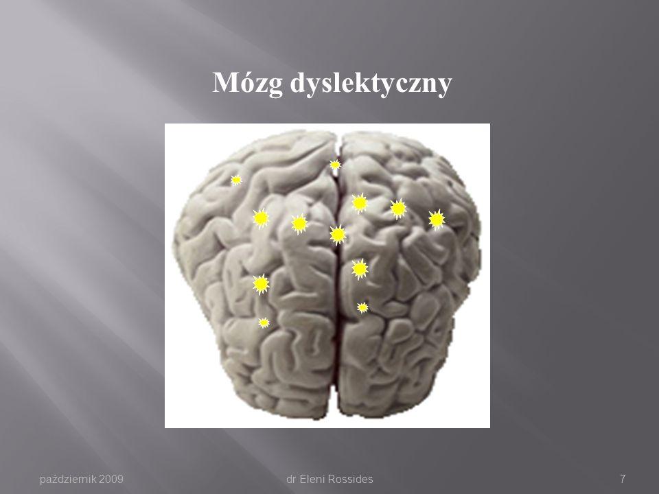 październik 2009dr Eleni Rossides6 Mózg niedyslektyczny
