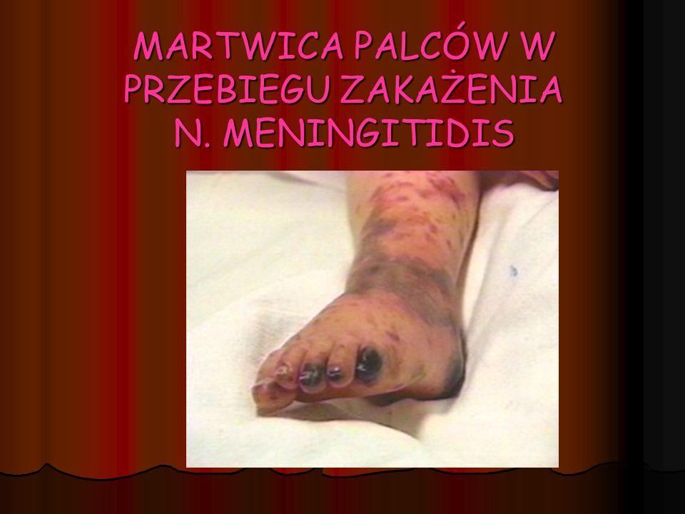 MARTWICA SKÓRY W PRZEBIEGU ZAKAŻENIA N. MENIGITIDIS