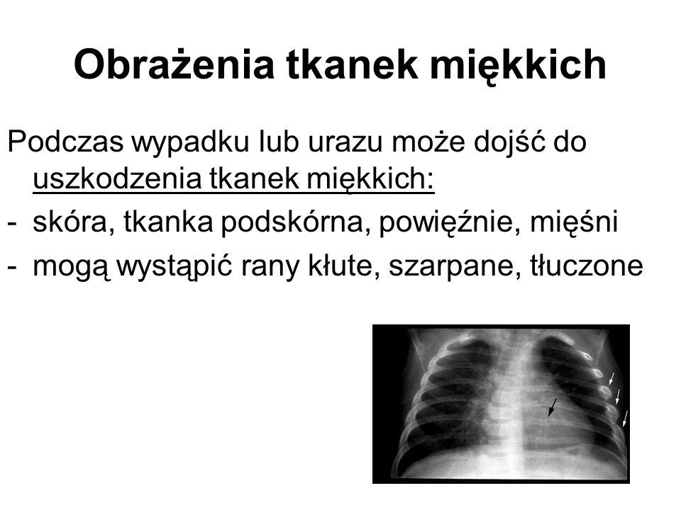 Pourazowa odma prężna - leczenie Jak najszybsze zmniejszenie ciśnienia panującego w jamie opłucnej Na miejscu wypadku można nakłuć jamę opłucnej igłą W szpitalu należy wykonać drenaż ssący