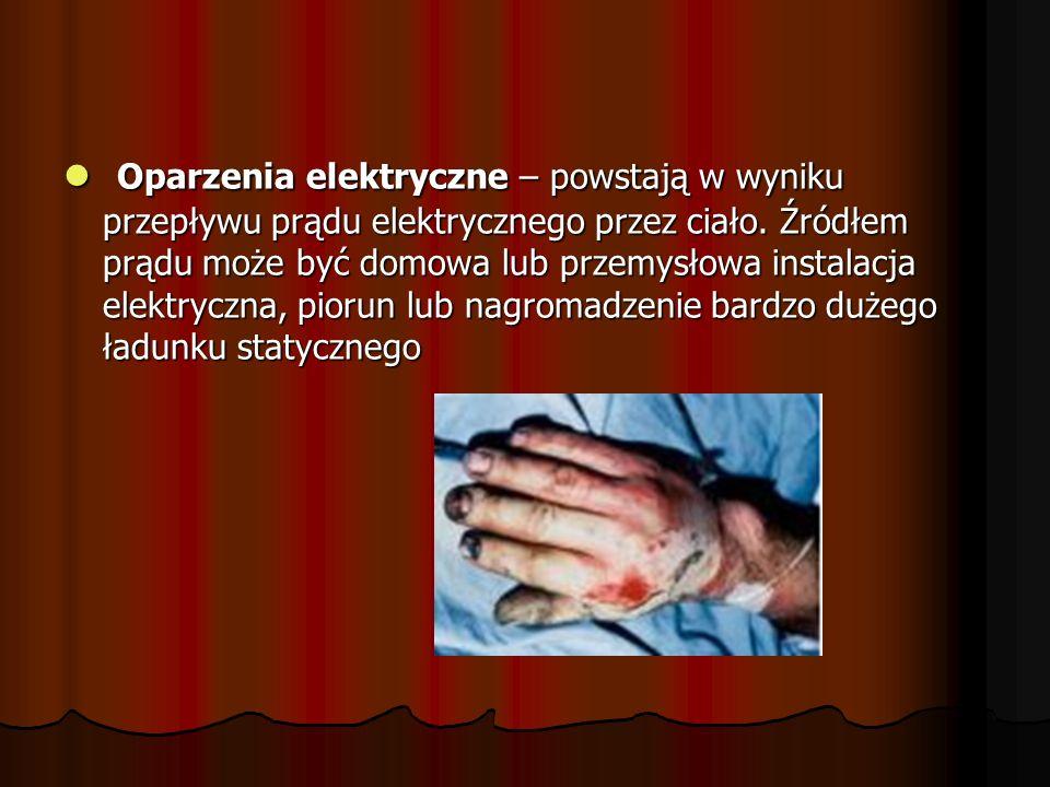 Oparzenia elektryczne – powstają w wyniku przepływu prądu elektrycznego przez ciało. Źródłem prądu może być domowa lub przemysłowa instalacja elektryc