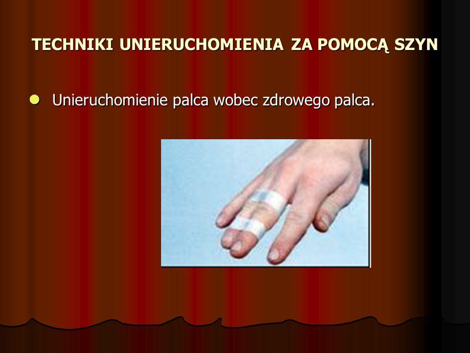 TECHNIKI UNIERUCHOMIENIA ZA POMOCĄ SZYN Unieruchomienie palca wobec zdrowego palca. Unieruchomienie palca wobec zdrowego palca.