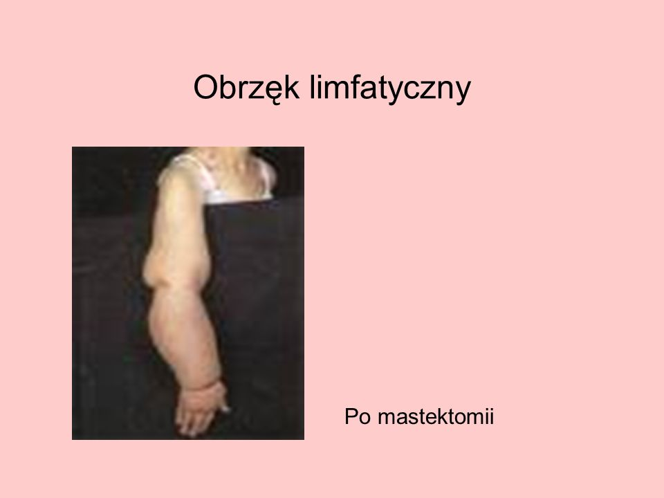 Obrzęk limfatyczny Po mastektomii