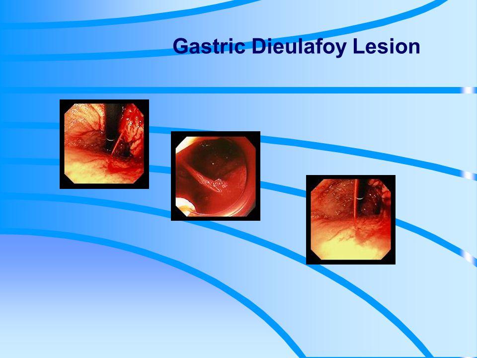 W każdym przypadku wrzodu żołądka w różnicowaniu należy brać pod uwagę raka żołądka.