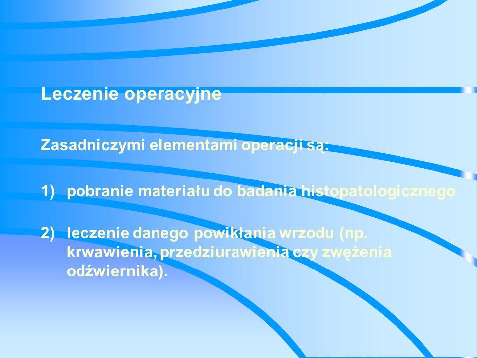 Innymi elementami operacji, zalecanymi w przypadku leczenia wrzodu żołądka, są: 4)wycięcie wrzodu, 5)wycięcie zmienionej chorobowo błony śluzowej oraz 6)zmniejszenie wydzielania żołądkowego.