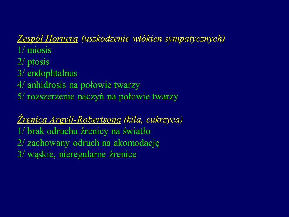 Zespół Hornera (uszkodzenie włókien sympatycznych) 1/ miosis 2/ ptosis 3/ endophtalnus 4/ anhidrosis na połowie twarzy 5/ rozszerzenie naczyń na połow