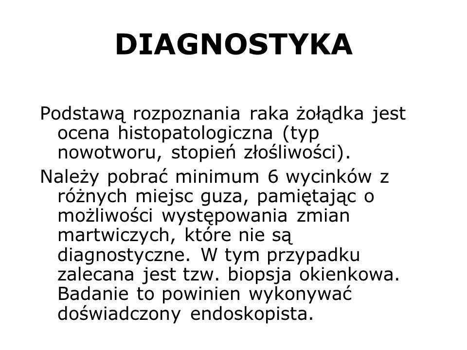 DIAGNOSTYKA Podstawą rozpoznania raka żołądka jest ocena histopatologiczna (typ nowotworu, stopień złośliwości). Należy pobrać minimum 6 wycinków z ró