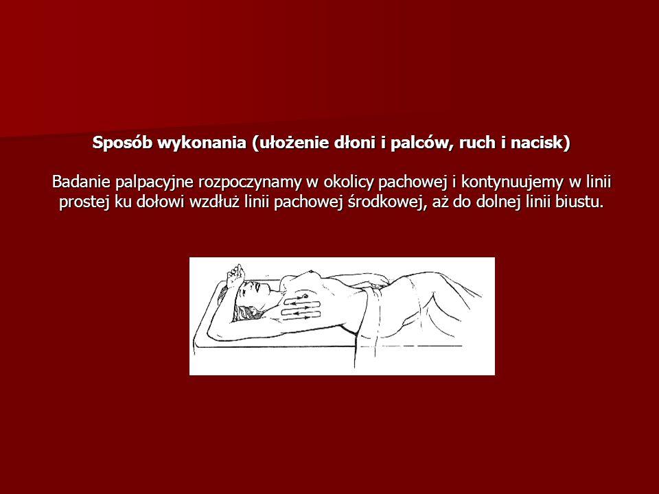 Sposób wykonania (ułożenie dłoni i palców, ruch i nacisk) Badanie palpacyjne rozpoczynamy w okolicy pachowej i kontynuujemy w linii prostej ku dołowi