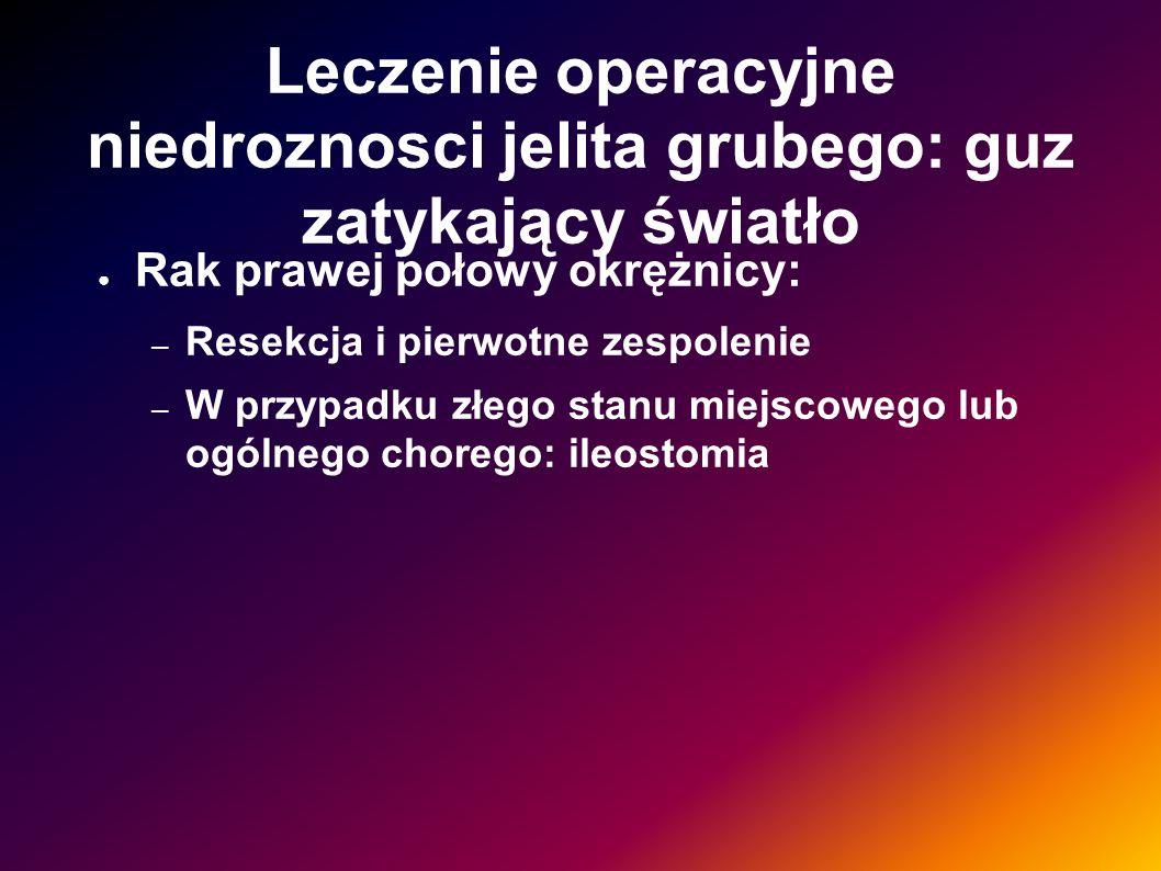 Leczenie operacyjne niedroznosci jelita grubego: guz zatykający światło Rak prawej połowy okrężnicy: – Resekcja i pierwotne zespolenie – W przypadku z