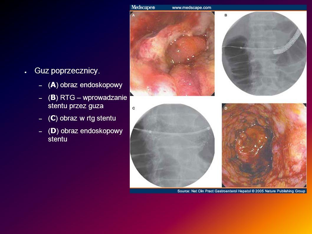 Guz poprzecznicy. – ( A ) obraz endoskopowy – ( B ) RTG – wprowadzanie stentu przez guza – ( C ) obraz w rtg stentu – ( D ) obraz endoskopowy stentu