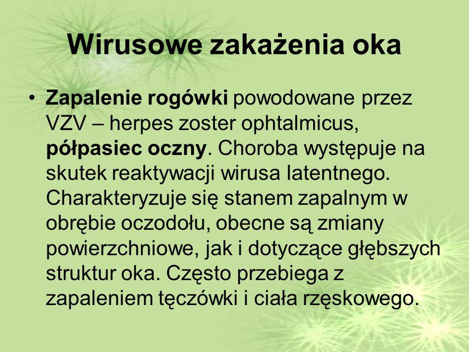 Wirusowe zakażenia oka Zapalenie rogówki powodowane przez VZV – herpes zoster ophtalmicus, półpasiec oczny.