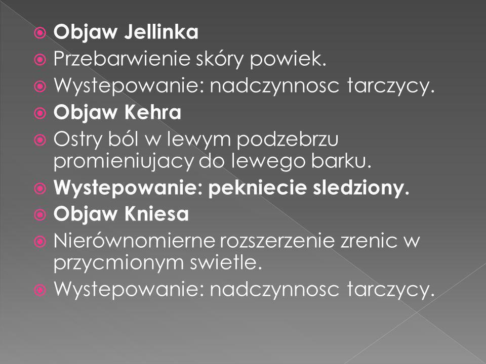Objaw Jellinka Przebarwienie skóry powiek. Wystepowanie: nadczynnosc tarczycy. Objaw Kehra Ostry ból w lewym podzebrzu promieniujacy do lewego barku.