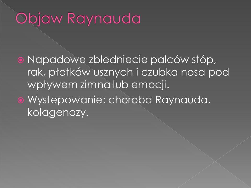 Napadowe zbledniecie palców stóp, rak, płatków usznych i czubka nosa pod wpływem zimna lub emocji. Wystepowanie: choroba Raynauda, kolagenozy.