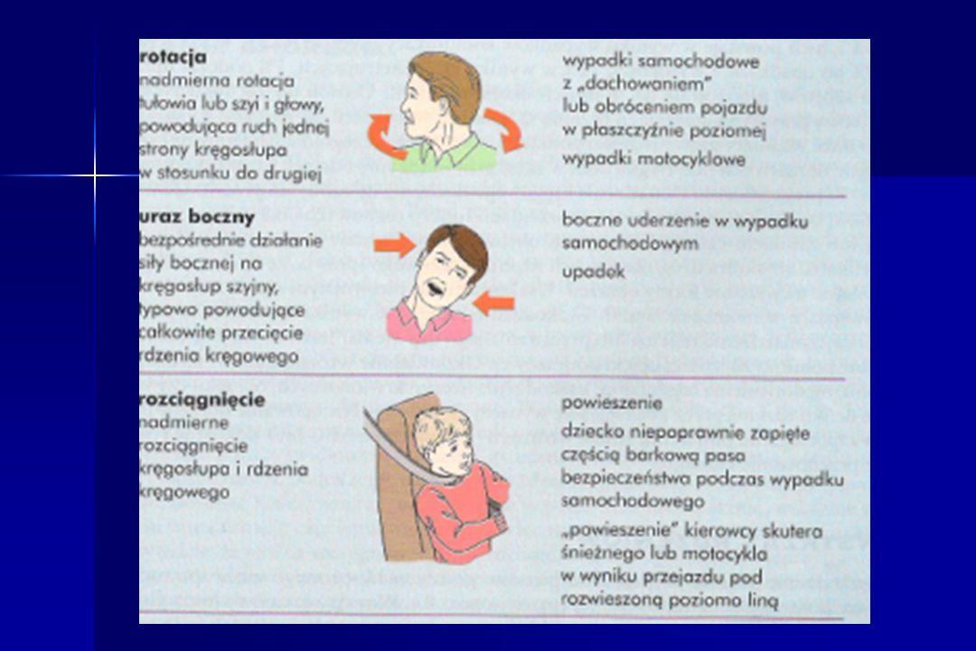 URAZ RDZENIA KRĘGOWEGO Pierwotny uraz rdzenia Pierwotny uraz rdzenia –Uszkodzenie jest natychmiastowe i nieodwracalne –Rdzeń zostaje przecięty, rozerwany, zgnieciony lub traci dopływ krwi Wtórny uraz rdzenia Wtórny uraz rdzenia –Uraz rdzenia rozwija się później z powodu: Niedotlenienia, obrzęku, niedociśnienia tętniczego, ucisku od obrzęku lub krwawienia dookoła rdzenia Niedotlenienia, obrzęku, niedociśnienia tętniczego, ucisku od obrzęku lub krwawienia dookoła rdzenia Prawidłowe postępowanie z poszkodowanym powinno zminimalizować uraz wtórny Prawidłowe postępowanie z poszkodowanym powinno zminimalizować uraz wtórny