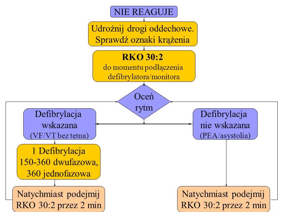 Udrożnij drogi oddechowe. Sprawdź oznaki krążenia NIE REAGUJE RKO 30:2 do momentu podłączenia defibrylatora/monitora Natychmiast podejmij RKO 30:2 prz
