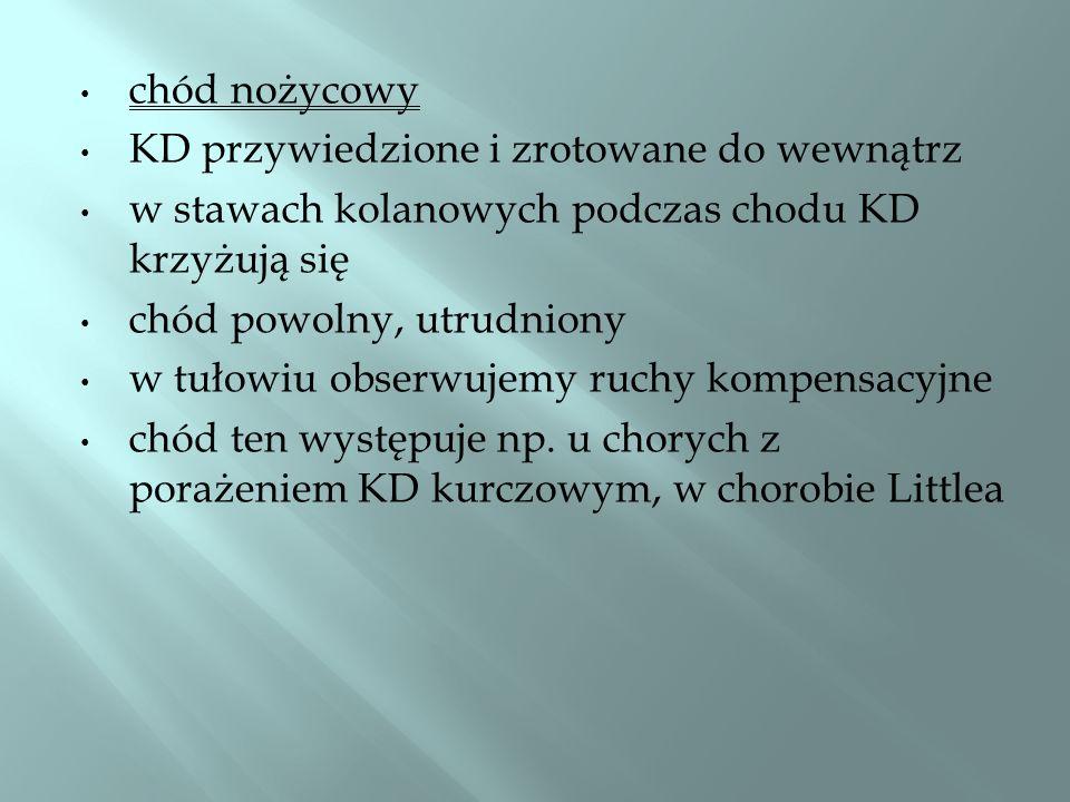 chód paretyczno-ataktyczny (chód kurczowo- bezwładny) chory usztywnia KD, wyrzuca je chwiejnie stopami mocno uderza o podłoże chód ten występuje np.
