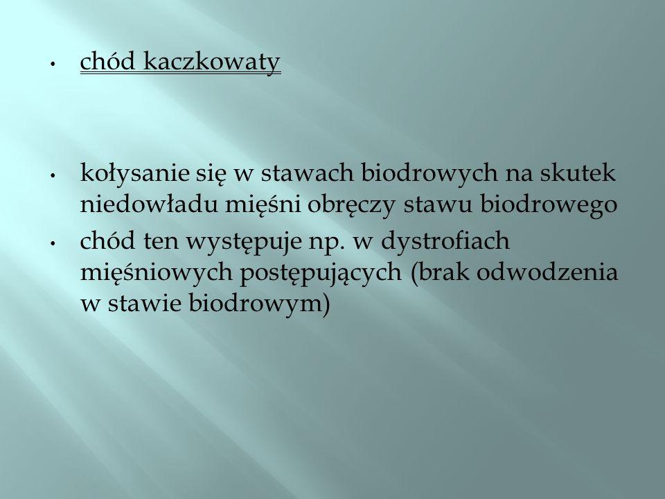 chód kaczkowaty kołysanie się w stawach biodrowych na skutek niedowładu mięśni obręczy stawu biodrowego chód ten występuje np. w dystrofiach mięśniowy