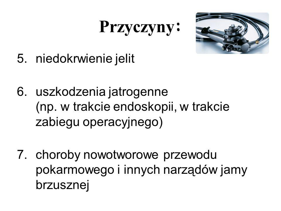 Przyczyny : 5.niedokrwienie jelit 6.uszkodzenia jatrogenne (np. w trakcie endoskopii, w trakcie zabiegu operacyjnego) 7.choroby nowotworowe przewodu p