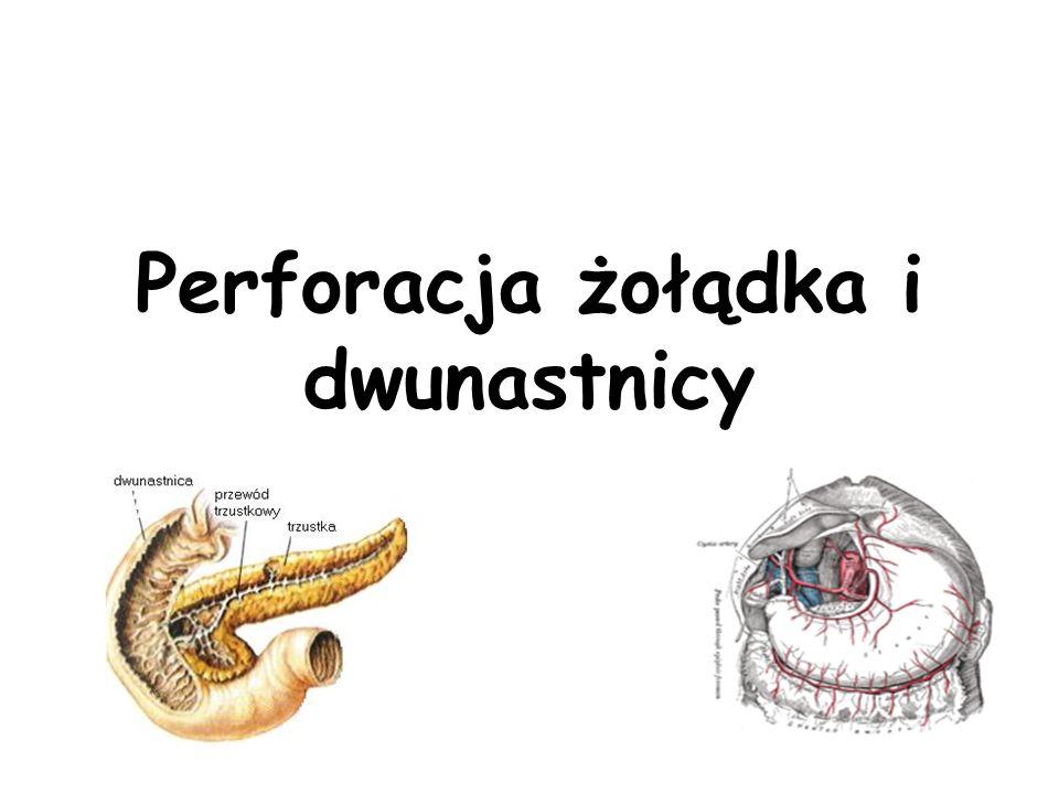 Perforacja żołądka i dwunastnicy