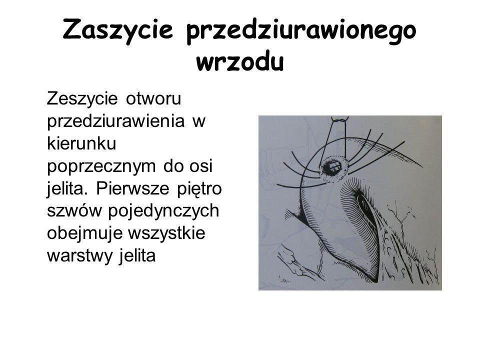 Zaszycie przedziurawionego wrzodu Zeszycie otworu przedziurawienia w kierunku poprzecznym do osi jelita. Pierwsze piętro szwów pojedynczych obejmuje w