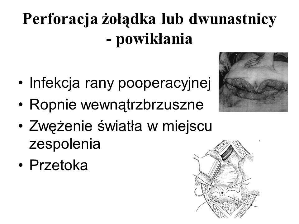 Perforacja żołądka lub dwunastnicy - powikłania Infekcja rany pooperacyjnej Ropnie wewnątrzbrzuszne Zwężenie światła w miejscu zespolenia Przetoka