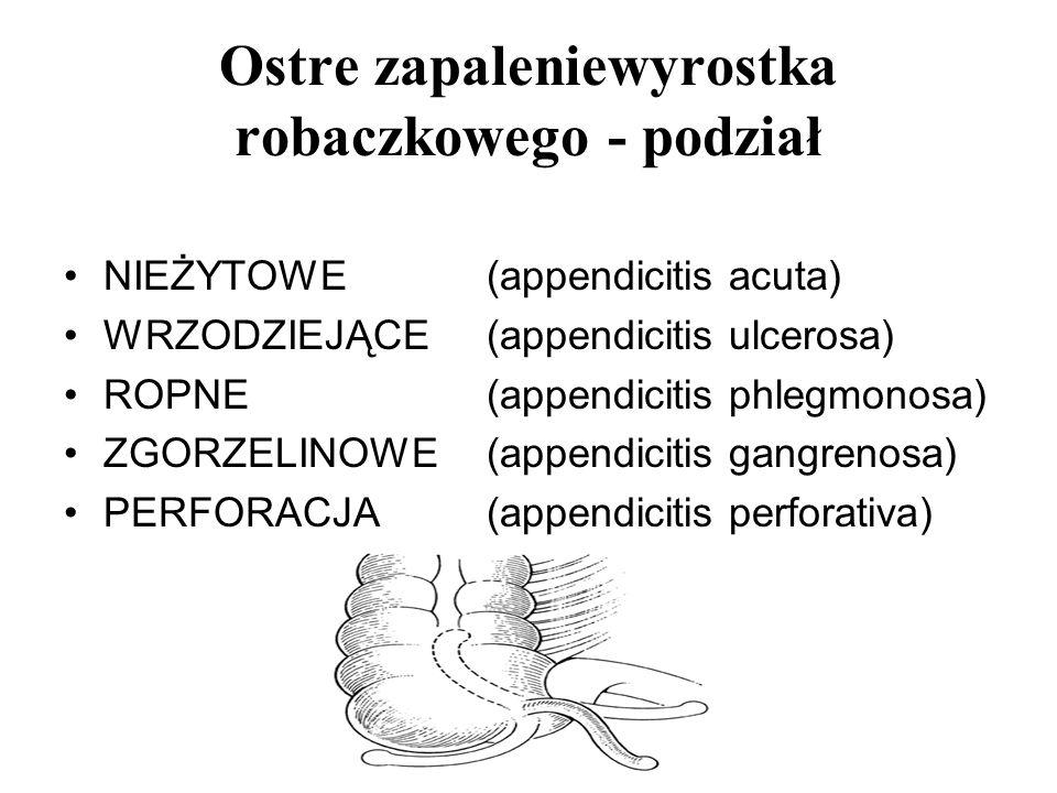 Ostre zapaleniewyrostka robaczkowego - podział NIEŻYTOWE(appendicitis acuta) WRZODZIEJĄCE(appendicitis ulcerosa) ROPNE(appendicitis phlegmonosa) ZGORZ
