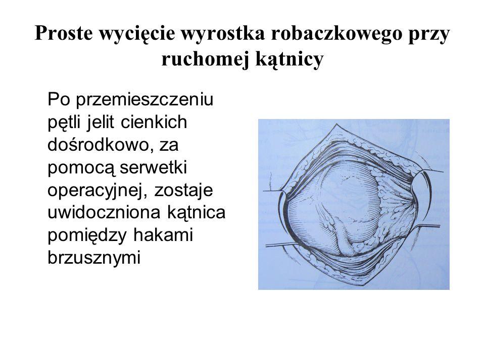 Proste wycięcie wyrostka robaczkowego przy ruchomej kątnicy Po przemieszczeniu pętli jelit cienkich dośrodkowo, za pomocą serwetki operacyjnej, zostaj