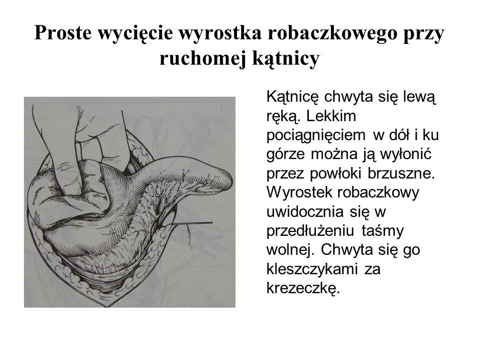 Proste wycięcie wyrostka robaczkowego przy ruchomej kątnicy Kątnicę chwyta się lewą ręką. Lekkim pociągnięciem w dół i ku górze można ją wyłonić przez