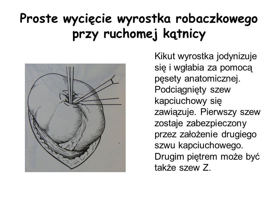 Proste wycięcie wyrostka robaczkowego przy ruchomej kątnicy Kikut wyrostka jodynizuje się i wgłabia za pomocą pęsety anatomicznej. Podciągnięty szew k